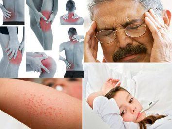 common symptoms of Dengue