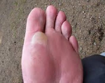 Getting blisters on your feet